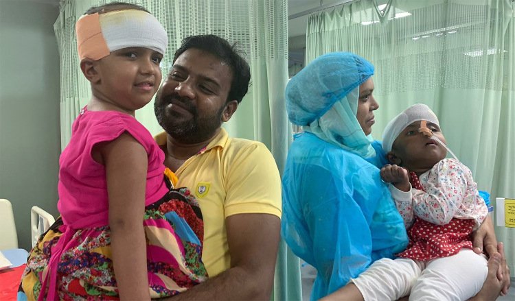 Szétválasztott bangladesi ikrek – Rukia is elhagyhatta az intenzív osztályt