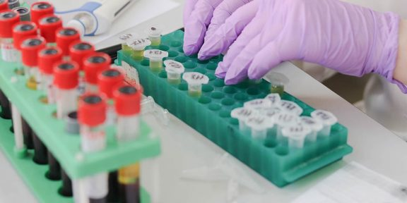 negatív, védőoltás, egyesült, vuhanban, izraelben, kórházból, koronavírus, kínában, franciaországban
